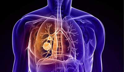 肿瘤专家张代钊谈肺癌的中西医结合治疗经验