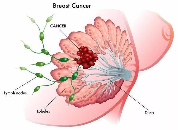 乳腺癌百科