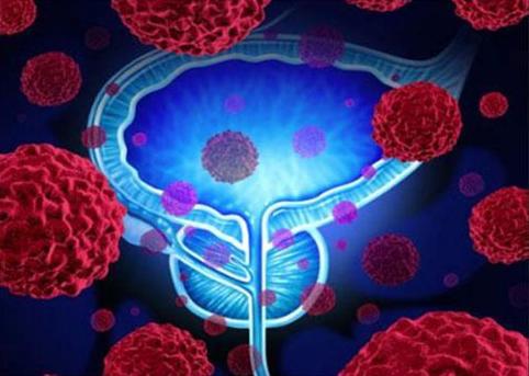 前列腺癌百科