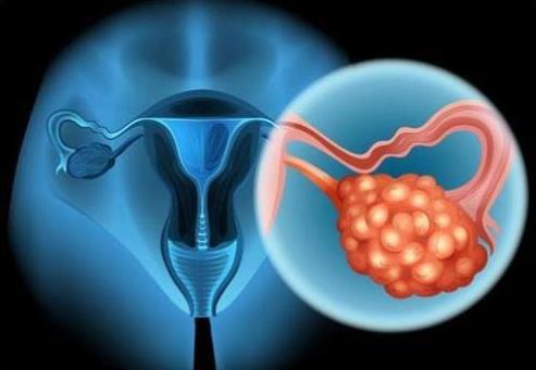 卵巢癌百科