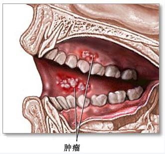 口腔癌百科