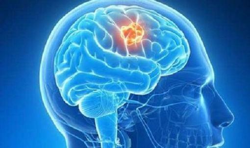 警惕脑肿瘤的六大预警信号