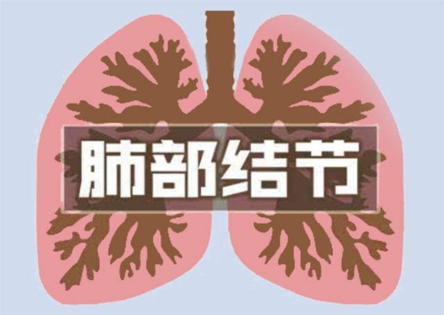 肺结节不一定是肿瘤!