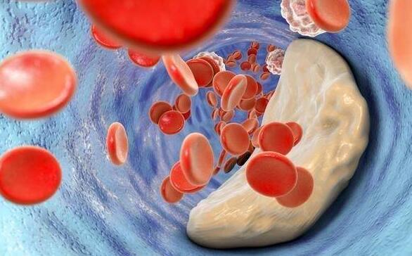 哪种方式能检查出有没有肝癌?