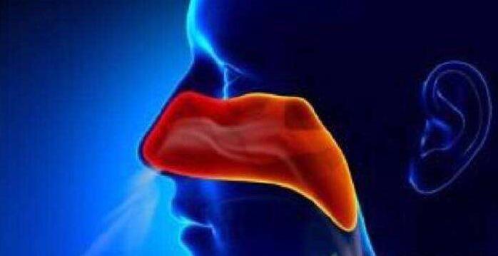 过敏性鼻炎会导致鼻咽癌发生吗?
