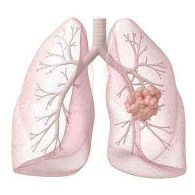 肺癌的几个误区