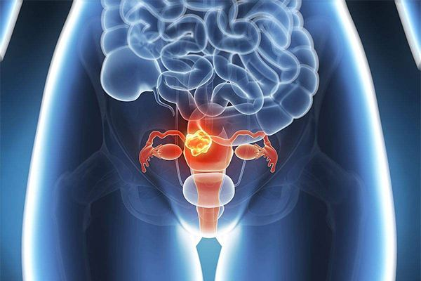 子宫癌也有偏爱的人群