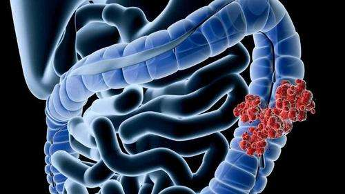 大肠癌的症状表现及检查治疗方式