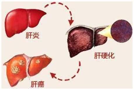 北京好中医—乙肝会引发肝癌吗?
