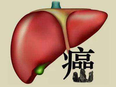 早期肝癌症状不明显,但仍然会露出马脚: