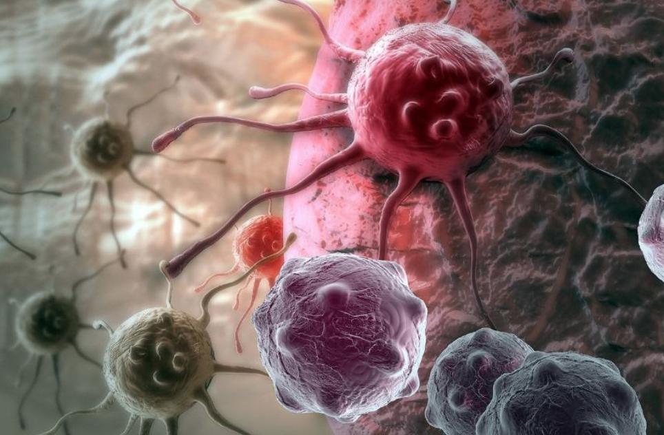 中医治疗如何治疗食道癌?